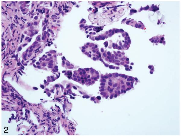 Diagnosis of lung cancer in small biopsies and cytology: implications of the 2011 International Association for the Study of Lung Cancer/American Thoracic Society/European Respiratory Society classification.